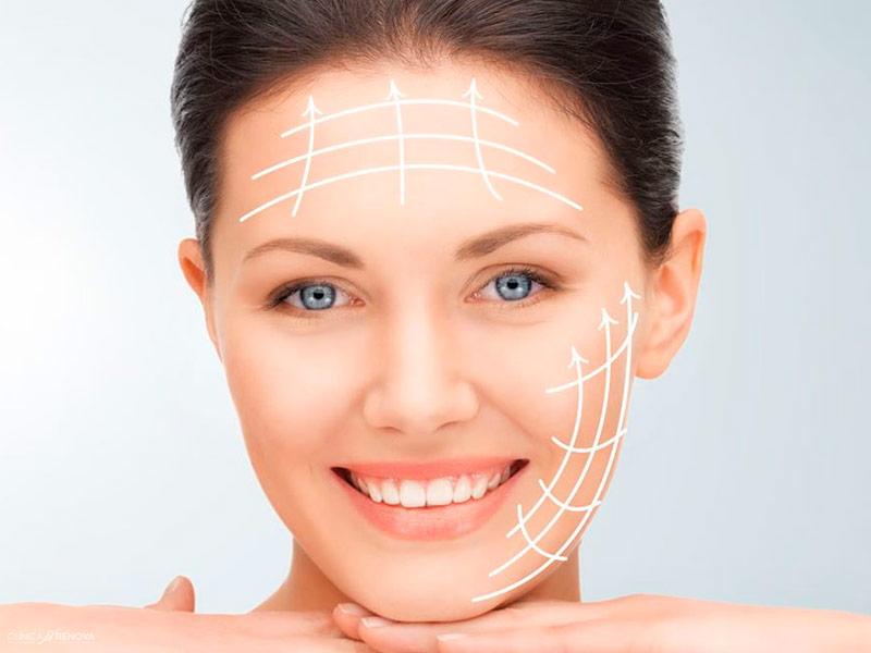 bioplastia-malaga-remodelacion-contorno-facial-clinica-renova