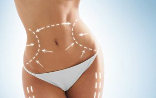 abdominoplastia-malaga-clinica-renova