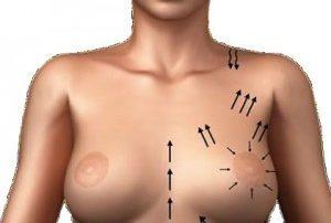 elevacion-de-senos-sin-cirugia-hilos-tensores-malaga-clinica-renova