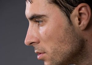 otoplastia-masculina-malaga-clinica-renova