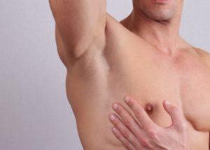 depilacion-laser-masculina-axilas-malaga