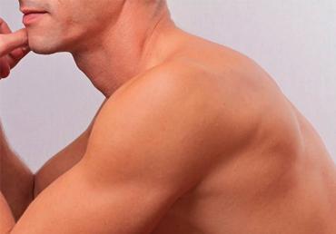 depilacion-laser-masculina-hombros-malaga
