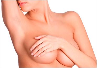depilacion-laser-senos-malaga
